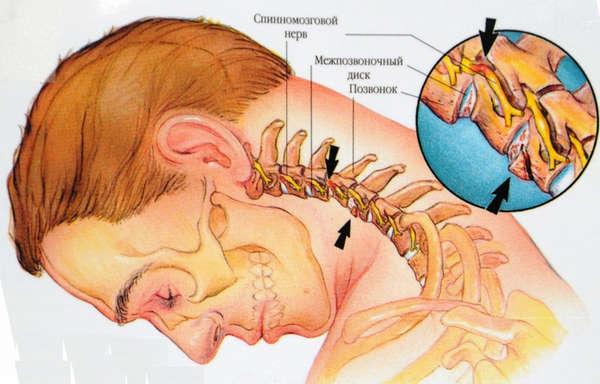 Боль в пояснице поможет ли массаж