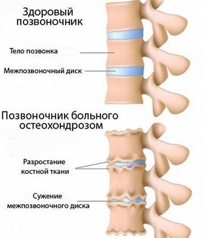 Как лечить при боли в шее
