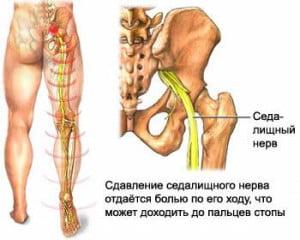 Защемление нерва в пояснице может отдаваться болью по ходу нерва и может доходить до пальцев ног.