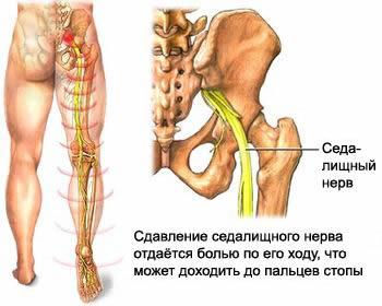 Защемление нерва в пояснице, защемления в спине и ноге - симптомы ...