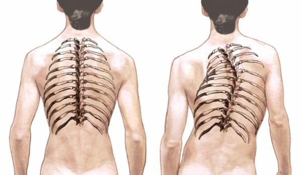 сколиоз грудного отдела позвоночника