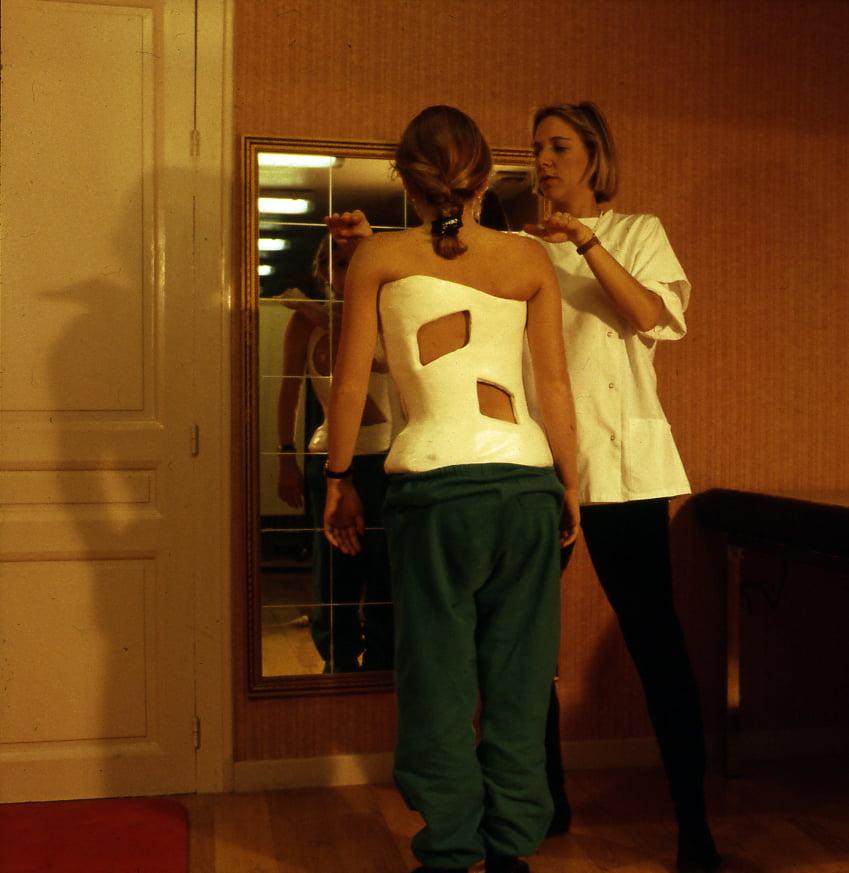 abbott's plaster cast for scoliosis