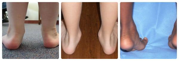 плоскостопие у ребёнка фото