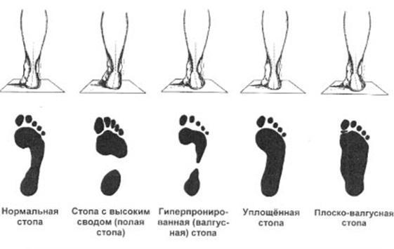 виды-плоскостопия