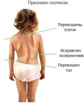 Все что вы должны нать про сколиоз спины