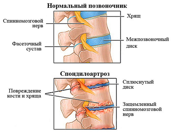 Спондилоартроз позвоночника