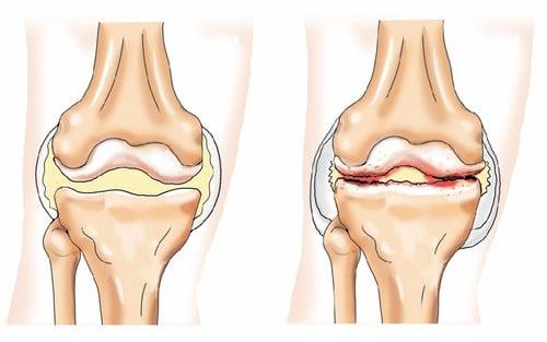 Изображение - Артроз коленного сустава 2 3 степени 1220606279