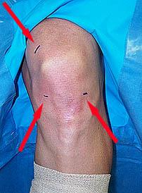 knee-portals
