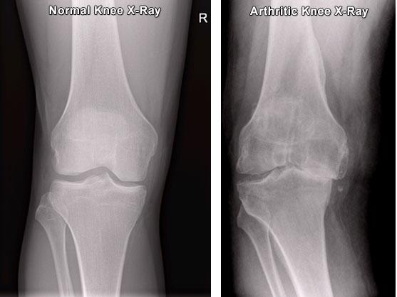 Изображение - Артроз коленного сустава 2 3 степени knee-xrays