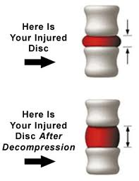 spinal-decomp-schematic-before-and-after
