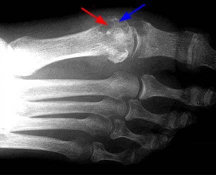подагрический артрит рентген