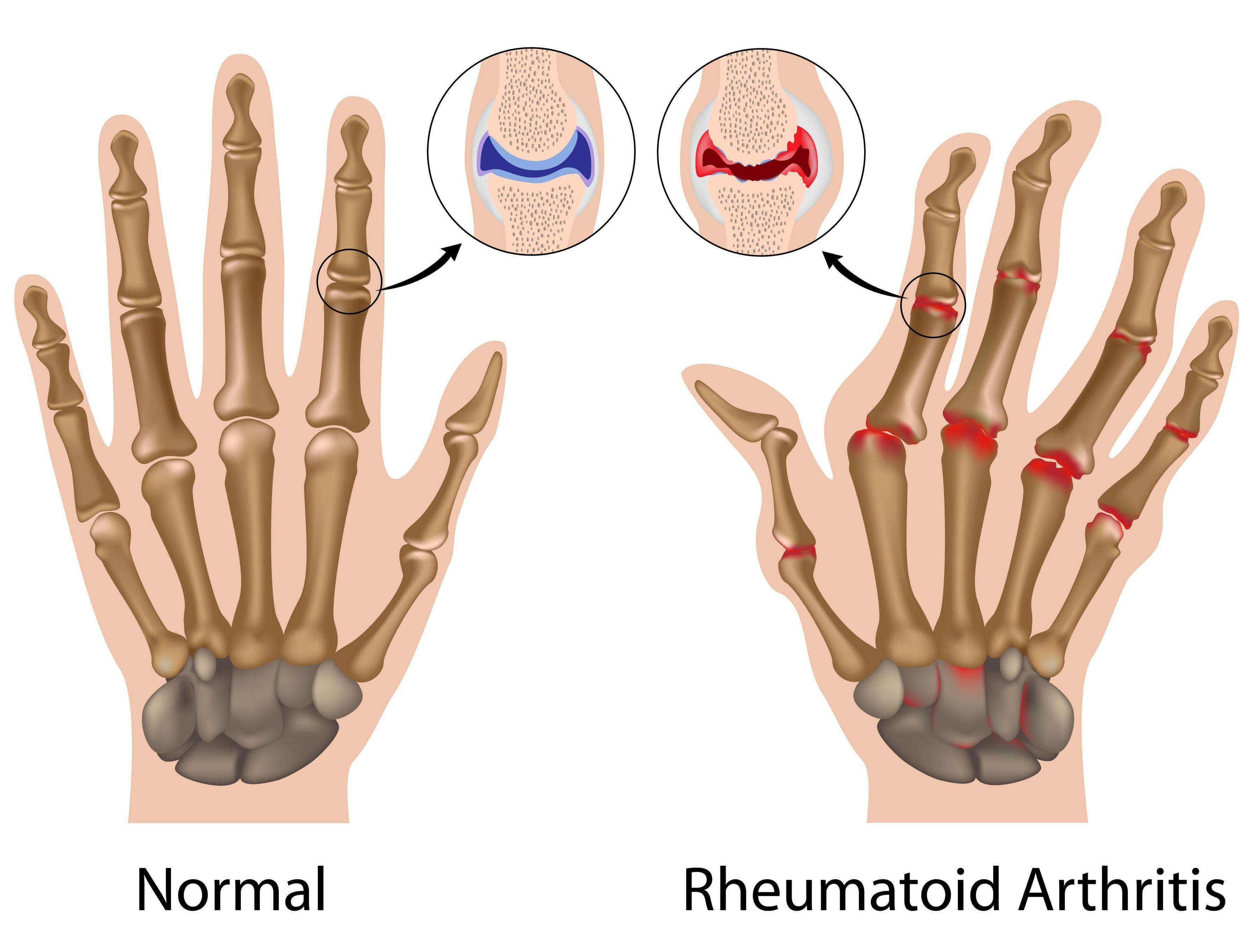 артроз артрит разница
