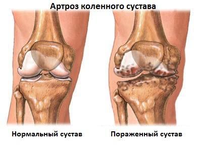 Гонартроз-коленного-сустава-2-степени-фото