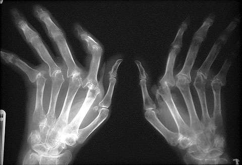 Ревматоидный артрит лечение должно быть осознанное
