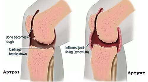 artroz-artrit-razlichie1