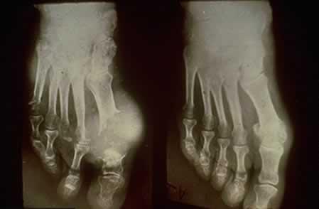 слева - разрушенная часть сустава