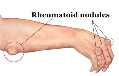 rheumatoid-nodules-sites1