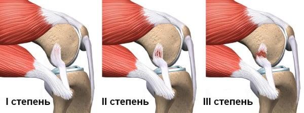 Растяжение связок суставов