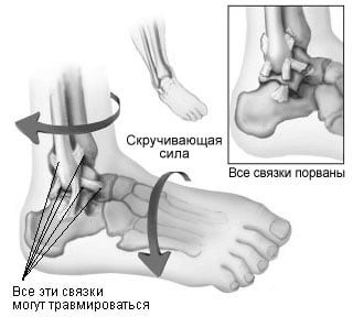 sprained_ankle