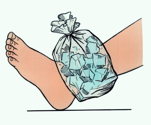 пакет со льдом наложенный на поврежденный голеностоп