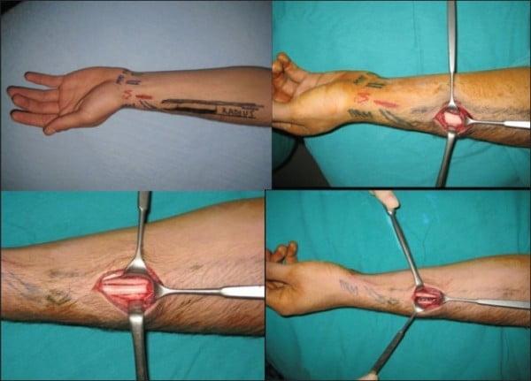 донорский трансплатат - лучевая кость