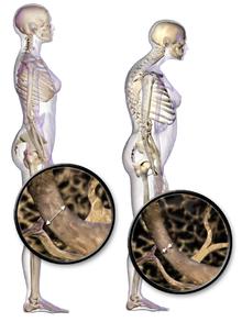 220px-Blausen_0686_Osteoporosis_01