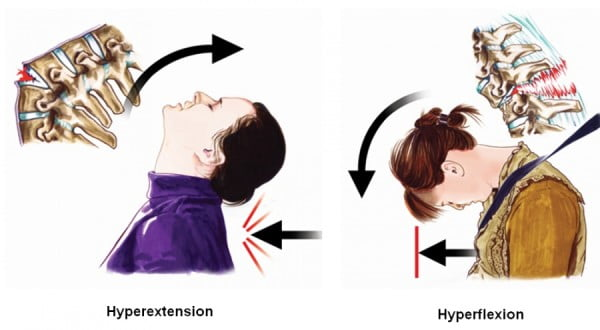 hyperextenion_hyperflexion_whiplash
