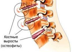 Остеофиты-позвоночника