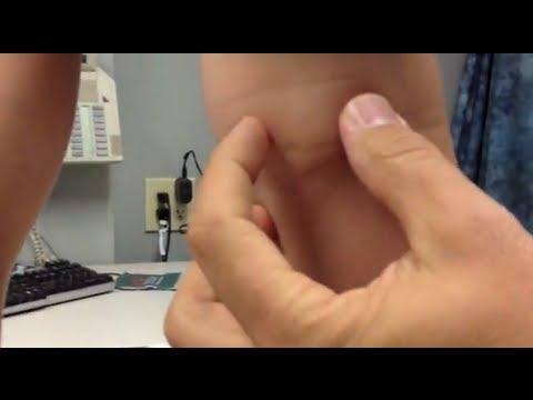 киста бейкера коленного сустава лечение отзывы