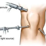 Артроскопия коленного сустава видео, процедура, реабилитация