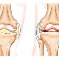 Степени артроза коленного сустава (1, 2, 3 степени)