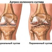 Артроз коленного сустава виды, степени, лечение и профилактика