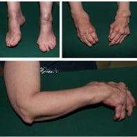 Ревматоидный артрит симптомы, виды и причины