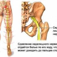 Защемление нерва в пояснице, ноге, спине — симптомы и как лечить