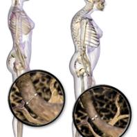 Резорбция кости (костной ткани) после имплантации