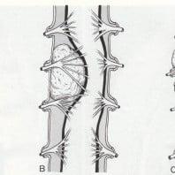 Симптоматика опухоли спинного мозга