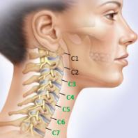 Шейный остеохондроз симптомы и лечение дома