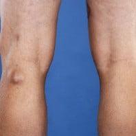 Киста Бейкера коленного сустава фото и разъяснения