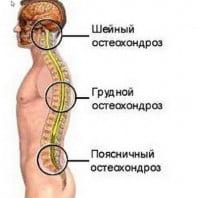 Общие понятия про остеохондроз и всд — фотографии, видео