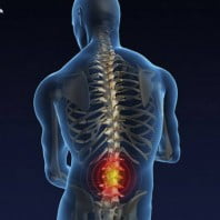 Остеохондроз пояснично крестцового отдела позвоночника: симптомы, причины возникновения и рекомендации по лечению