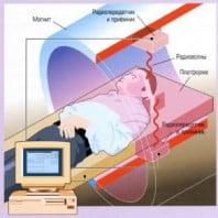 Что такое МРТ позвоночника и как оно проходит