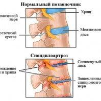 Спондилоартроз позвоночника признаки, лечение, степени