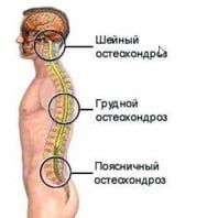 Лечение остеохондроза грудного отдела позвоночника — упражнения, гимнастика