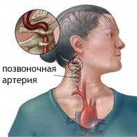 Мануальная терапия шейного отдела позвоночника — травмы